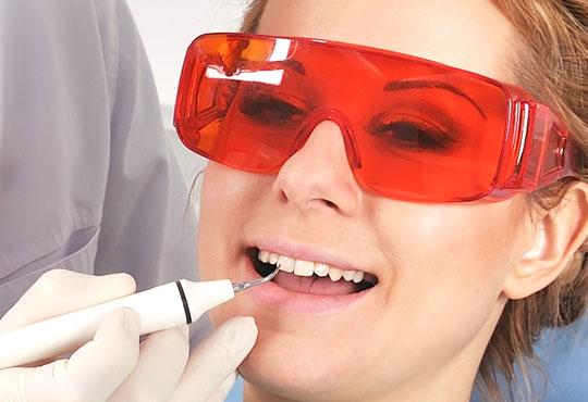 За здрави зъби! Фотополимерна пломба или почистване на зъбен камък с ултразвук, полиране и обстоен преглед в Дентална клиника Персенк!
