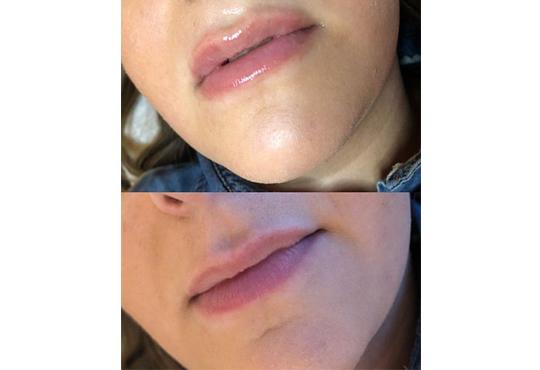 Влагане на 1 мл. дермален филър HIALURONICA за устни или бръчки чрез най-съвременния и безболезнен метод - инжектор пен, в NSB Beauty Center! - Снимка 6