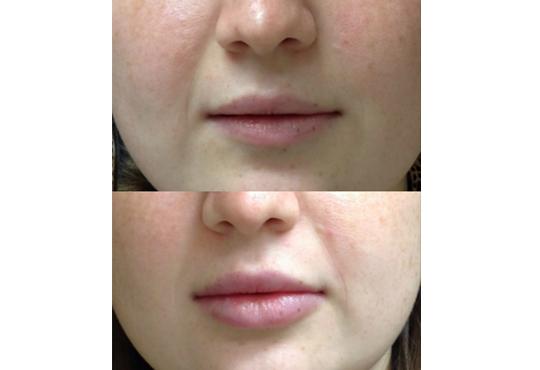Влагане на 1 мл. дермален филър HIALURONICA за устни или бръчки чрез най-съвременния и безболезнен метод - инжектор пен, в NSB Beauty Center! - Снимка 5