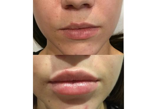 Влагане на 1 мл. дермален филър HIALURONICA за устни или бръчки чрез най-съвременния и безболезнен метод - инжектор пен, в NSB Beauty Center! - Снимка 4