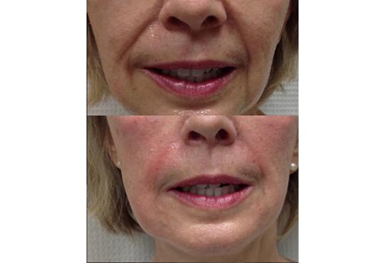 Влагане на 1 мл. дермален филър HIALURONICA за устни или бръчки чрез най-съвременния и безболезнен метод - инжектор пен, в NSB Beauty Center! - Снимка 8