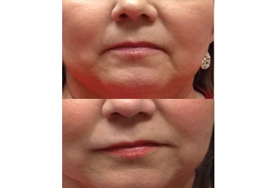 Влагане на 1 мл. дермален филър HIALURONICA за устни или бръчки чрез най-съвременния и безболезнен метод - инжектор пен, в NSB Beauty Center! - Снимка 7